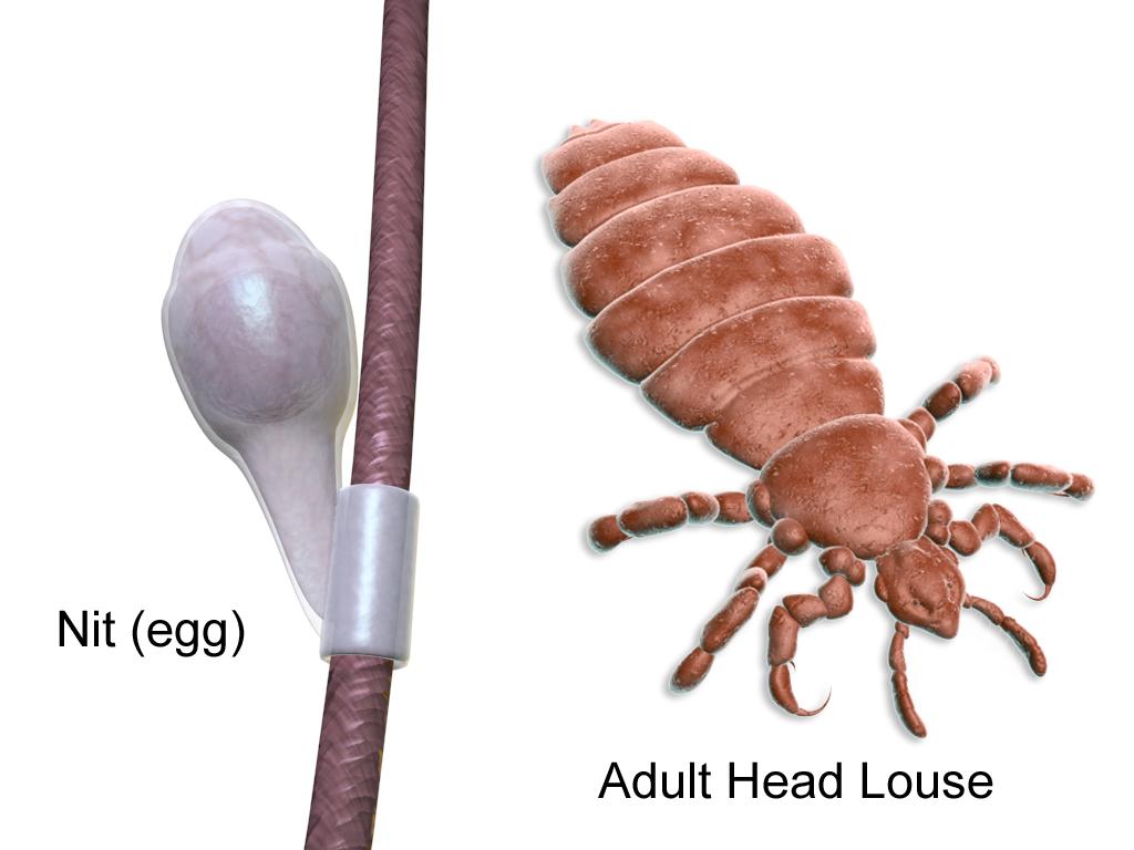 Head lice, Nits